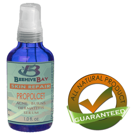 propolis burn rash skin serum repair
